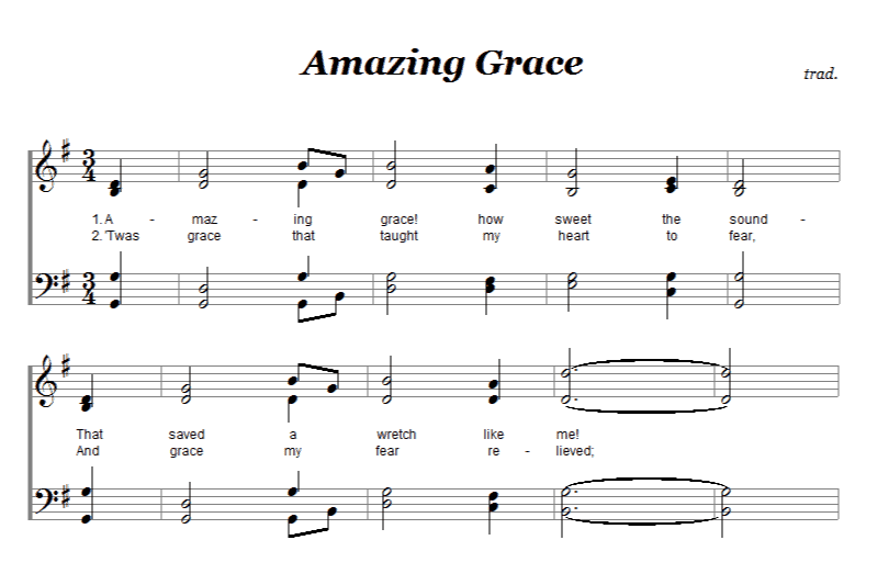 How to Arrange Music for Your Choir | Forte Notation